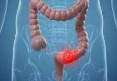ابداع یک روش غیرتهاجمی برای تشخیص سرطان روده بزرگ